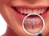 зубы в ортопедической конструкции