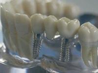 соединение имплантов с протезом