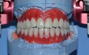 Базальная имплантация зубов в клинике доктора Кизима