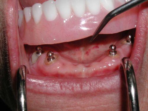 имплантация зубов дорогостоящее лечение или нет