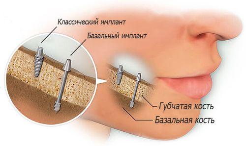 имплантация зубов в России