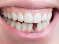 Какой имплант лучше поставить на передние зубы