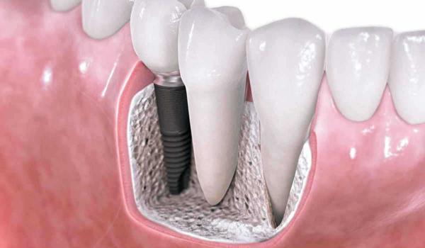 как долго приживаются импланты зубов