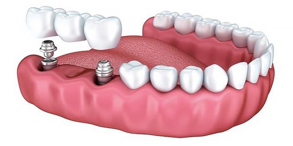 какой вид протезирования зубов лучше