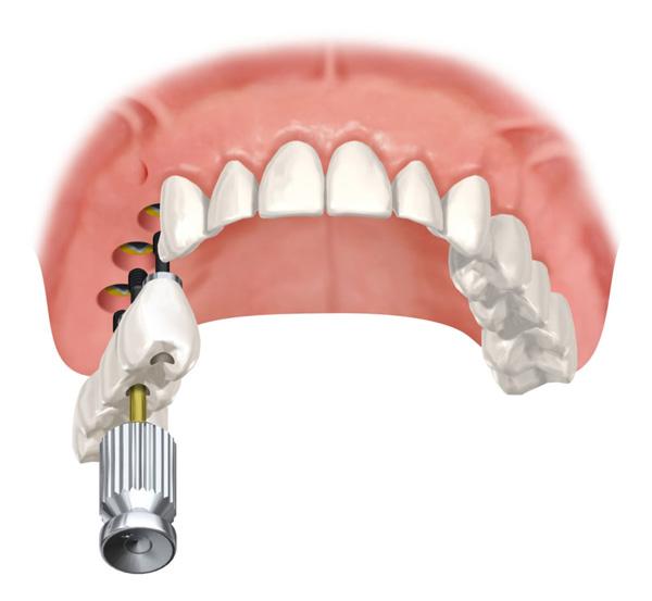 как устроен имплант зуба