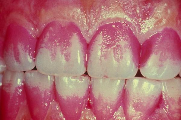 определение индекса гигиены полости рта