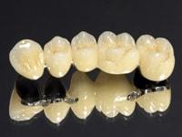 замещение дефектов зубных рядов