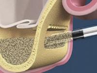 синуслифтинг в стоматологии что это такое