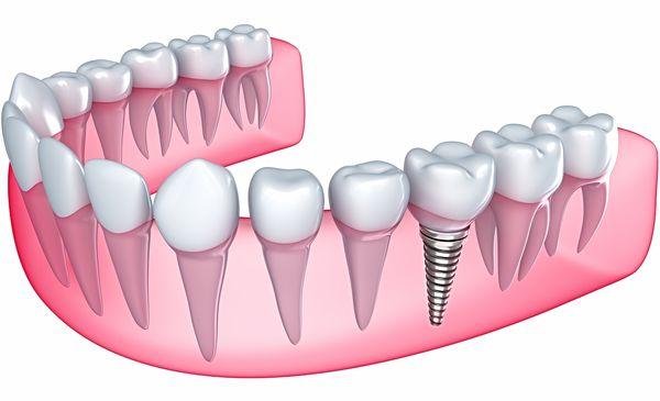 какие протезы применяются при базальной имплантации