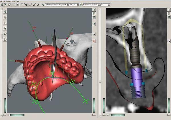 компьютерное моделирование при базальной имплантации