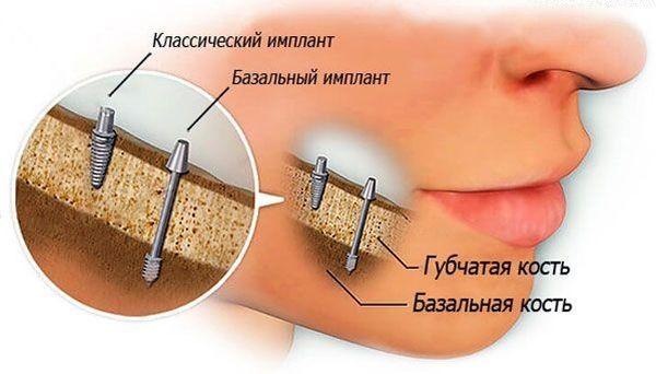 можно ли совмещать имплантат и родные зубы