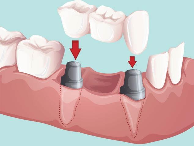 имплантация жевательных зубов на нижней челюсти