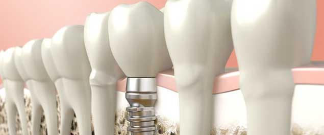 базальная имплантация зубов в Уфе