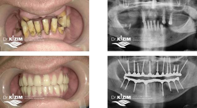 как подготовиться к имплантации зубов перед операцией