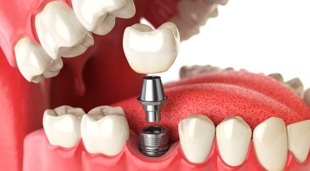 перепротезирование зубов