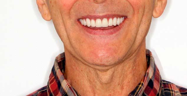 перепротезирование, имплантация зубов