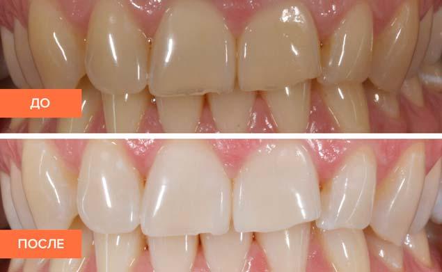 фотоотбеливание зубов в Саранске