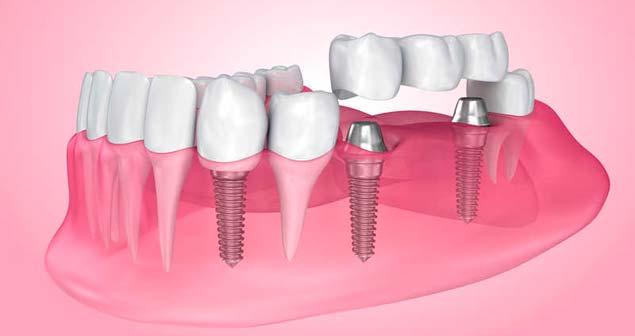 базальная имплантация зубов в Балашихе