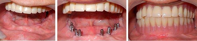 одноэтапная имплантация зубов показания