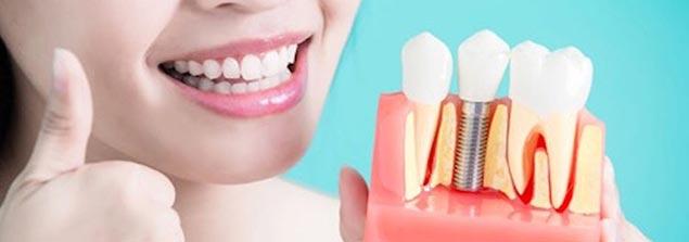 базальная имплантация зубов цена