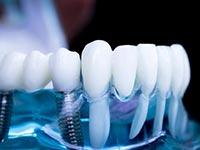 базальная имплантация зубов в Коломне