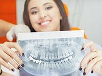 базальная имплантация зубов в Серпухове