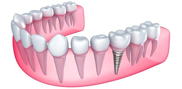 базальная имплантация зубов в Пензе