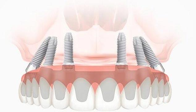 базальная имплантация зубов в Домодедово