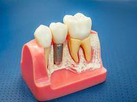 базальная имплантация зубов в Нурсултане