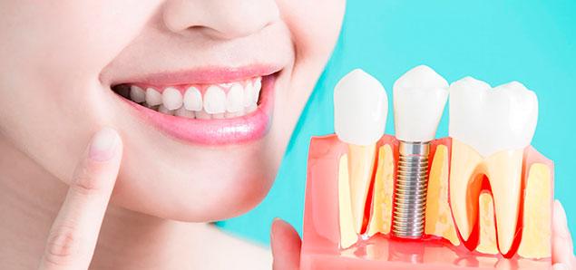 базальная имплантация зубов в Ногинске