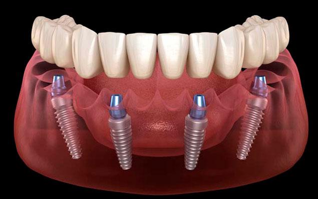 базальная имплантация зубов в Долгопрудном
