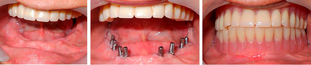 базальная имплантация зубов в Раменском